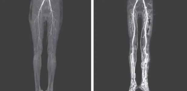 Com queimação nas pernas, indiana de 24 anos descobre doença medieval – VivaBem