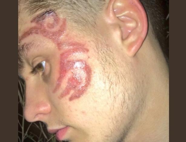 Colley exibe resultado nada agradável da tatuagem de hena feita durante suas férias