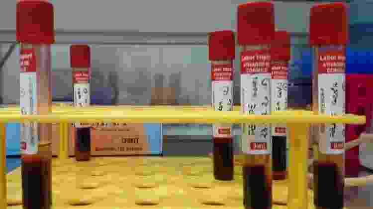 Teste de sangue - USP Imagens/Divulgação - USP Imagens/Divulgação