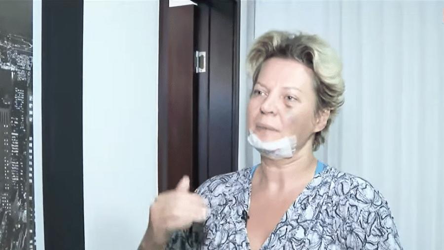 A deputada Joice Hasselmann machucada - Reprodução/CNN