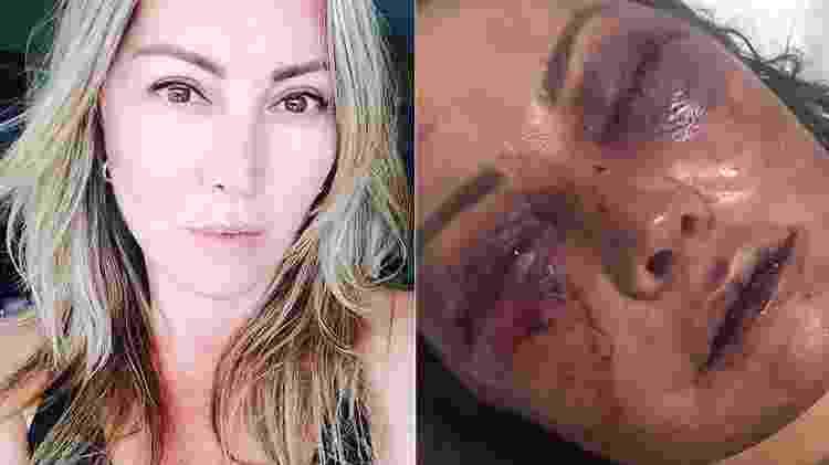 Montagem sobre fotos de Elaine Caparróz, espancada por homem no Rio de Janeiro - Reprodução/Facebook e Reprodução/Instagram/Kyra Gracie - Reprodução/Facebook e Reprodução/Instagram/Kyra Gracie