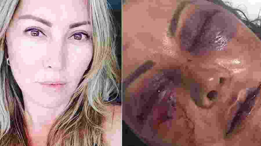 Montagem sobre fotos de Elaine Caparroz, espancada por homem no Rio de Janeiro - Reprodução/Facebook e Reprodução/Instagram/Kyra Gracie