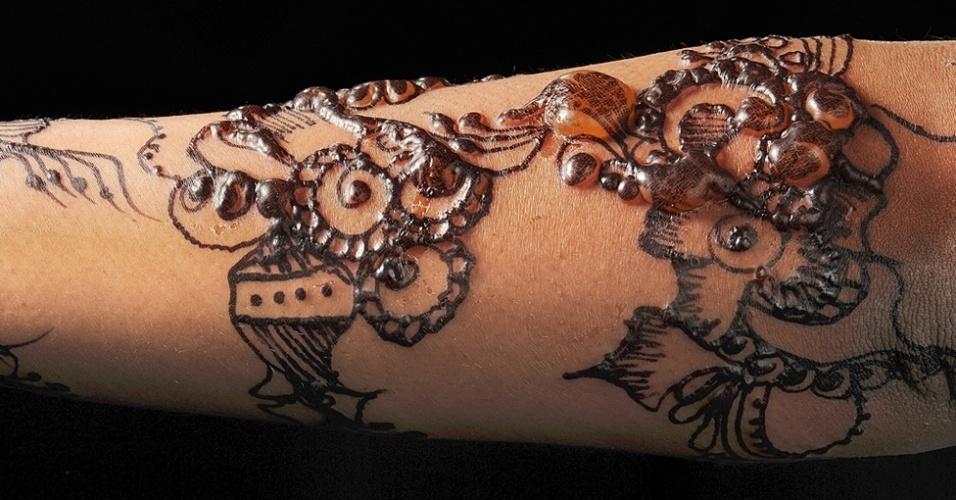 """'Aqui você pode ver uma tatuagem em henna negra no antebraço de uma jovem que teve uma reação alérgica à tinta"""", explicou Dirk Pilat, diretor médico de aprendizado virtual no Royal College para clínicos-gerais, na Grã-Bretanha. """"Com uma bela iluminação mostra a transparência da pele que se transformou em bolhas, capturando o estágio inicial da reação."""" A tinta da planta da henna é usada em tatuagens temporárias ou para tintura de cabelo. Mas, para obter a henna negra, tintas químicas podem ser misturadas"""