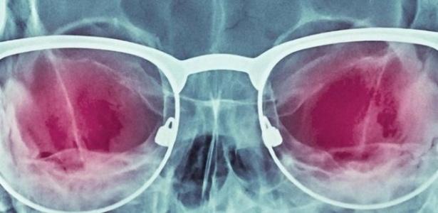 Promessa de uma visão de raio-X nunca caiu em desuso, mas até que ponto pode se tornar realidade?