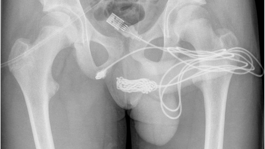 Raio x mostra como cabo USB ficou preso na uretra de adolescente - Reprodução/Urulogy Case Reports
