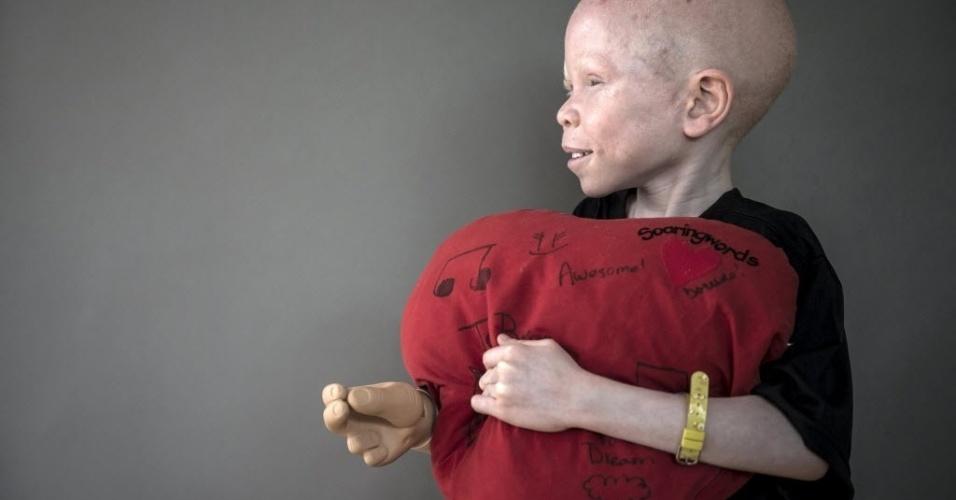 30.set.2015 - Baraka Cosmas, criança da Tanzânia de 5 anos, posa para um retrato no bairro de Staten Island, em Nova York, nos Estados Unidos. O albinismo é uma doença congênita que afeta cerca de uma em 20 mil pessoas no mundo, deixando-a sem pigmentação na pele, cabelo e olhos. Na África, existem superstições de que os membros de albinos são bons amuletos para feitiçarias, então se torna comum amputar quem nasce com essa condição. A imagem é do dia 21 de setembro e foi divulgada nesta quarta-feira (30)