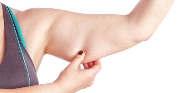 """Nossa pele, quando emagrecemos muito (e rapidamente), pode não """"voltar ao lugar"""""""