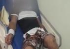 Paciente com esquizofrenia aguarda amarrado vaga em hospital de SP (Foto: Reprodução)