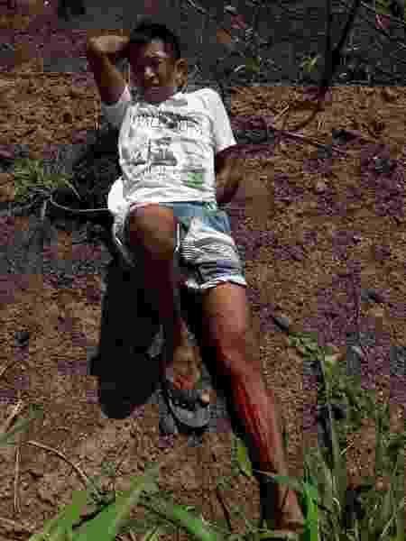 Membro da etnia guajajara é alvo de ataque a tiros no Maranhão - Arquivo pessoal