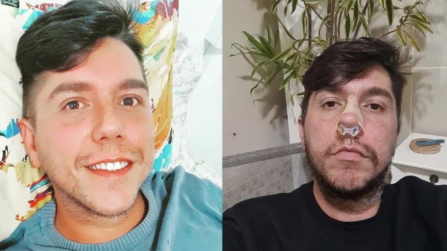 Thiago Delgado, de 35 anos, fez preenchimento labial e perdeu parte do nariz - Arquivo pessoal