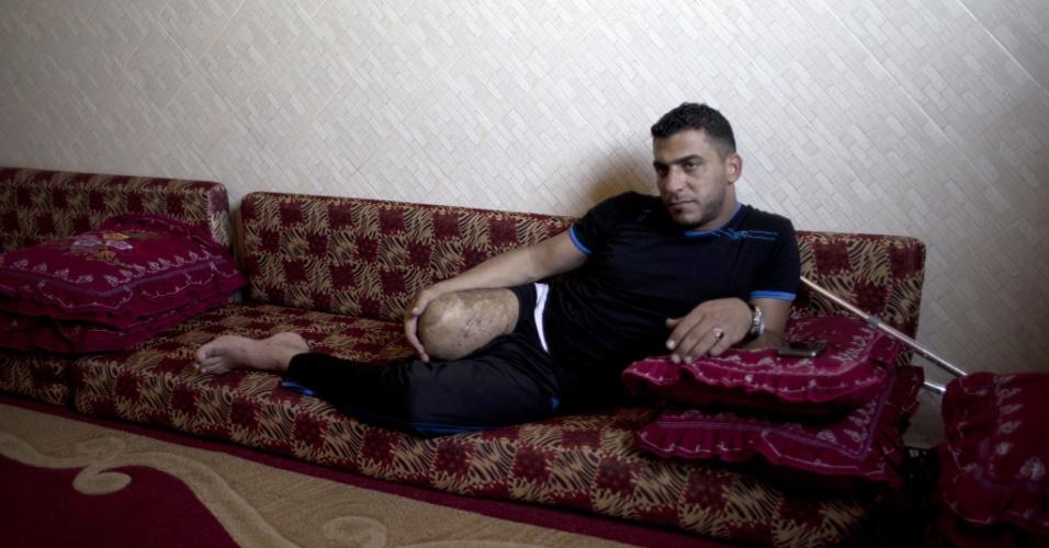 29.jul.2015 - Wael al-Namla, 26, deixa no sofá da sua casa em Rafah, no sul da faixa de Gaza. Ele teve um dos membros amputados durante a guerra de 50 dias entre Israel e militantes do Hamas no verão de 2014 (no hemisfério Norte), durante um ataque israelense que ficou conhecido como