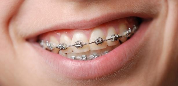 Pequeno fio de metal de aparelho dental perfurou pontos de intestino delgado de mulher