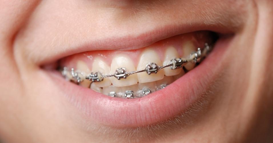aparelho dental; dentista; dentes, aparelho, correção