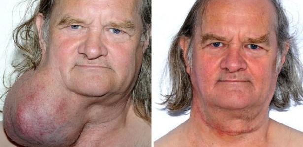 Após 24 anos, médicos retiram tumor de tamanho de melão de pescoço de paciente - BBC