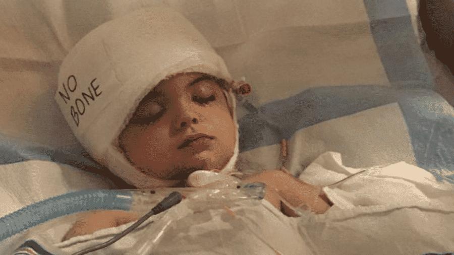 A médica que atendeu Joseph explicou que ele sofreu um sangramento intracraniano devido a uma malformação arteriovenosa cerebral - Arquivo pessoal