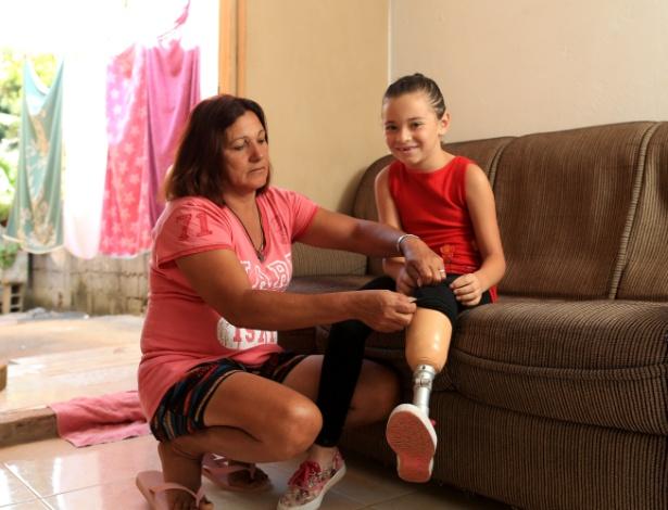 Ana Clara usa prótese no lugar da perna amputada após desabamento