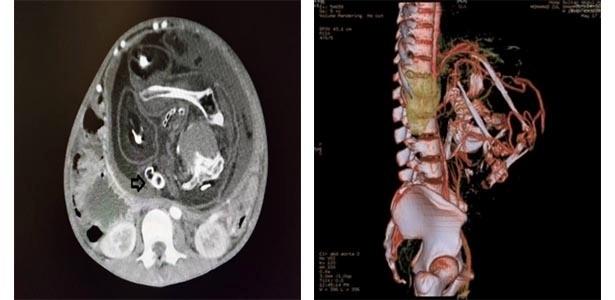 Na imagem à esquerda, tomografia mostra região intra-abdominal de jovem de 15 anos com massa no interior. A flecha indica a coluna vertebral do feto. Na imagem à direita, a massa localizada na região do abdome e da pelvis tem destacados os vasos arteriais que a alimentavam