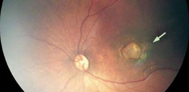 Foto mostra caso grave de atrofia de retina, que causa perda da visão, em bebê com microcefalia