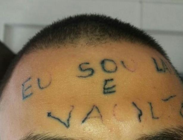 Jovem que teve testa tatuada iniciou sessões para apagar o desenho - Divulgação/Grand House