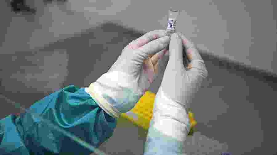 Analista de laboratório estuda amostra de teste de covid-19, o novo coronavírus - Carl de Souza/AFP