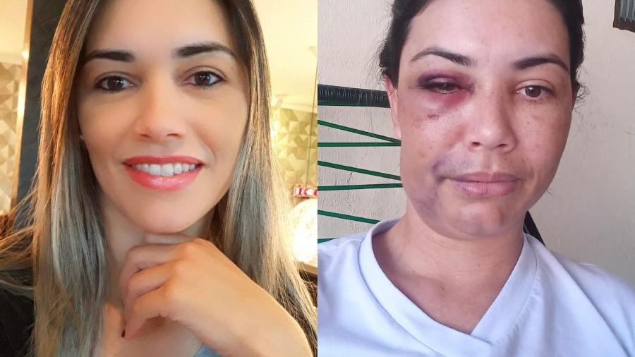 """Mulher foi agredida em vários momentos durante o assalto; segundo polícia, acusados confessaram """"intenção de matar"""" - Reprodução/ Arquivo pessoal/ Facebook"""