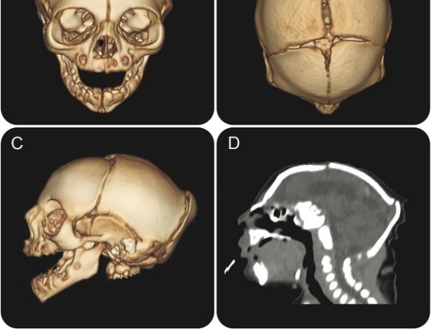 Imagens tridimensionais inéditas mostram crânio de criança com microcefalia