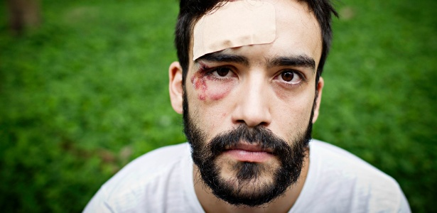 4.dez.2012 - O advogado André Cardoso Gomes Baliera, com ferimentos após ser vítima de homofobia em São Paulo, em 2012