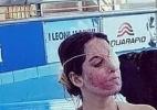 Vítima de ataque com ácido, modelo italiana volta ao trabalho - Gessica Notaro/Facebook