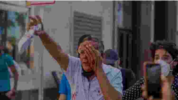 Homem é ferido no olho pela PM de Pernambuco - Reprodução - Reprodução