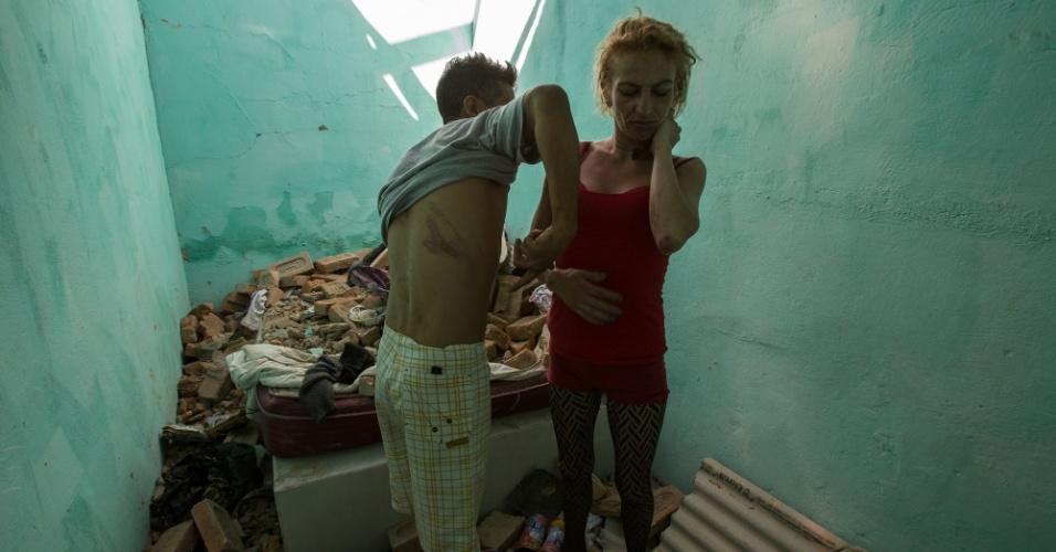 Caio e Kamila mostram os ferimentos causados pela demolição na pensão onde moram, no último dia 23