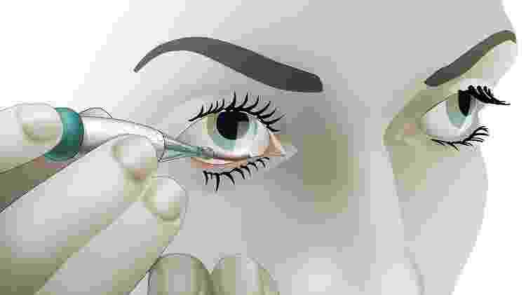 o que aconteceu com a revolucionária lente de contato para medir