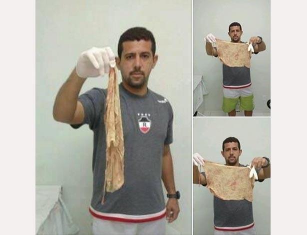 Erivaldo Veloso, marido de Thamara Macedo, mostra tampão esquecido no corpo da mulher após o parto