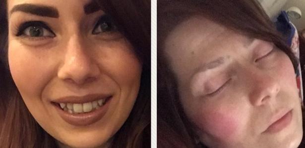 Essas duas fotos de Alison Morton foram tiradas com poucas horas de diferença - a fibromialgia é uma doença invisível, o que significa que algumas vezes não é aparente
