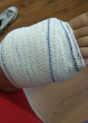Adolescente não retirou projétil de dentro do pé; médico disse que, se ela sentir dor após 15 dias, uma cirurgia será necessária