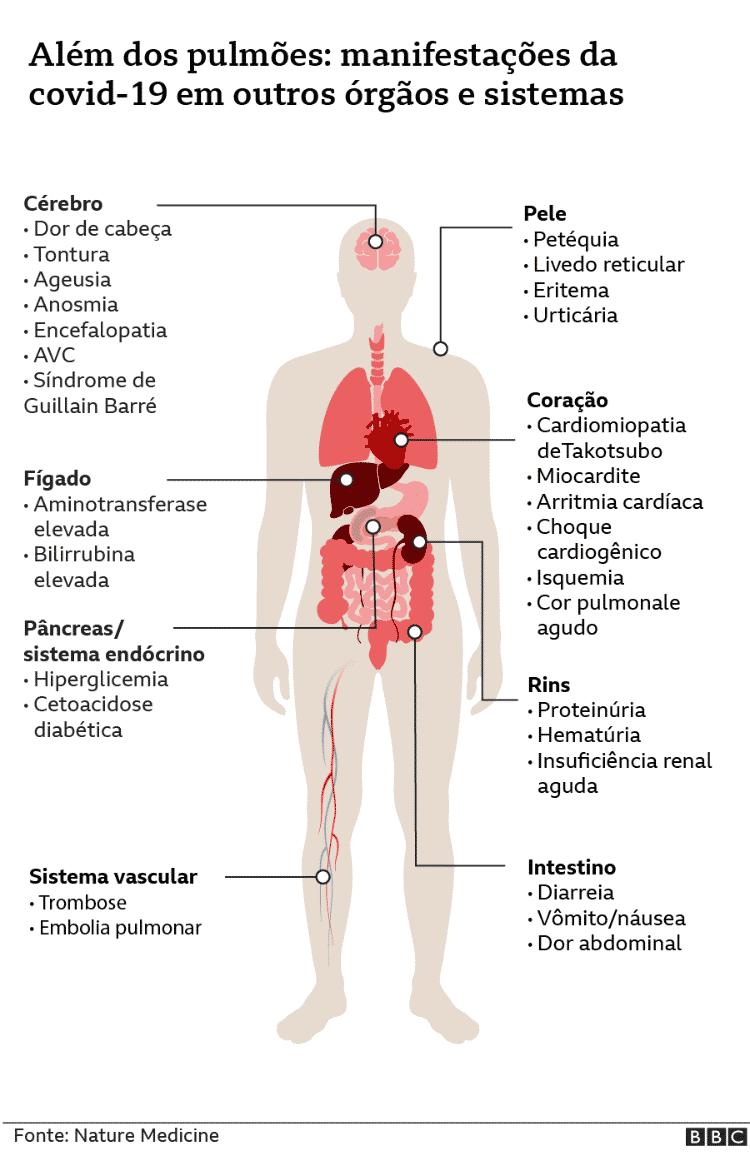 Covid-19 se manifesta em vários órgãos, além de pulmões - BBC - BBC