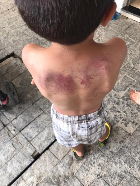 Garoto foi agredido pela mãe em Balneário Camboriú - Divulgação/Conselho Tutelar Balneário Camboriú