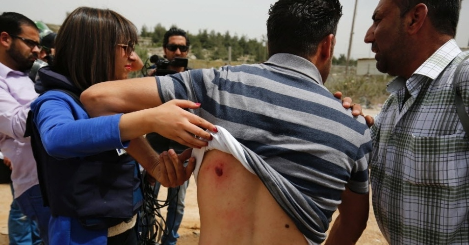 3.mai.2016 - Jornalista palestino mostra ferimentos causados por disparos de forças israelenses durante uma manifestação no Dia da Liberdade de Imprensa Mundial