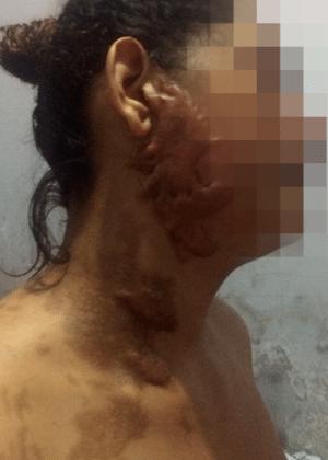 Jovem de 21 anos ficou desfigurada e perdeu a visão após ataque - Divulgação/Polícia Civil