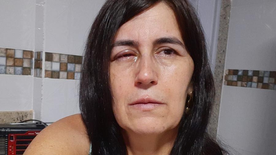 Regina Amorim se recupera após ter os olhos colados por supercola na terça-feira (21) - Reprodução/ Arquivo pessoal