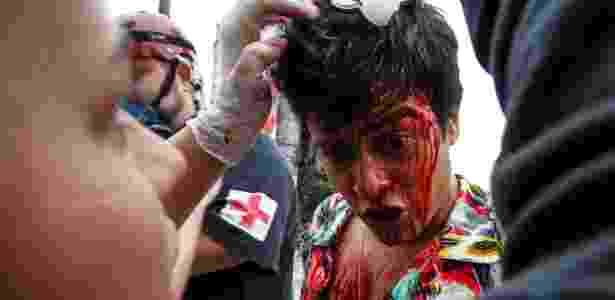 manifestante ensanguentado  - Ale Vianna/Eleven/Estadão Conteúdo - Ale Vianna/Eleven/Estadão Conteúdo