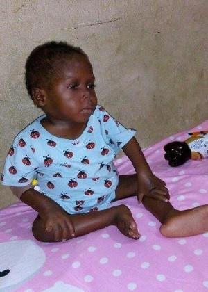 Hope fez transfusões de sangue