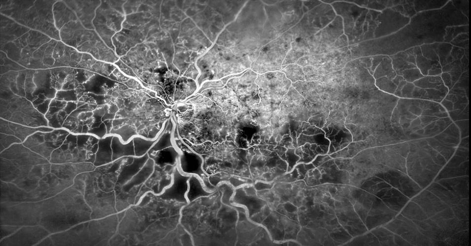 """'O que é fascinante é que, quando você vê, você não pensa automaticamente no olho"""", disse o juiz Rob Kesseler. 'Parece uma vista área de uma cidade à noite ou uma imagem de uma galáxia distante.' A imagem feita por Kim Baxter foi criada com fotos dos vasos sanguíneos na retina, vistos aqui como linhas brancas, enquanto um corante fluorescente passava por eles."""