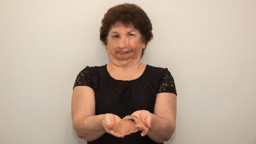 A professora Alaíde Mussato usa a prótese no lado direito do rosto e segura uma antiga nas mãos - Celso Cristiano Forato/Arquivo Pessoal