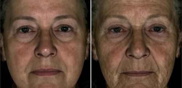 Ilustração mostra efeito das rugas no rosto