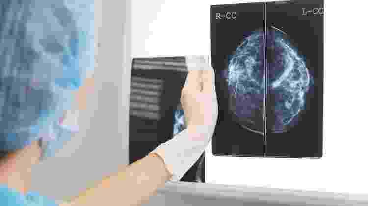 Há menos exames de câncer sendo feitos no Brasil, gerando preocupações de que tumores evoluam indetectados - Getty Images - Getty Images