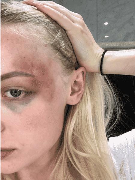 Um dos hematomas sofridos e divulgados por Anthonia - Twitter/Anthonia Rochus