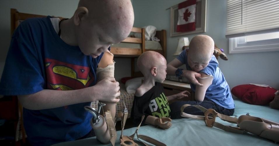 30.set.2015 - Os meninos albinos se arrumam e colocam suas próteses no quarto que dividem no bairro de Staten Island, em Nova York, nos Estados Unidos. As crianças são da Tanzânia, onde há quem acredite que as crianças albinas são fantasmas que trazem má sorte. A imagem é do dia 21 de setembro e foi divulgada nesta quarta-feira (30)