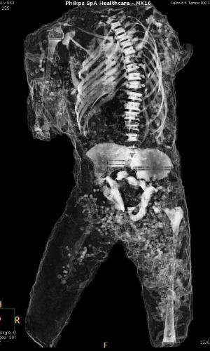 29.set.2015 - Tomografia axial computadorizada de múmia de Pompeia, na Itália. Um projeto investiga os hábitos e as classes sociais das vítimas da erupção do Vesúvio, no ano 79 d.C.