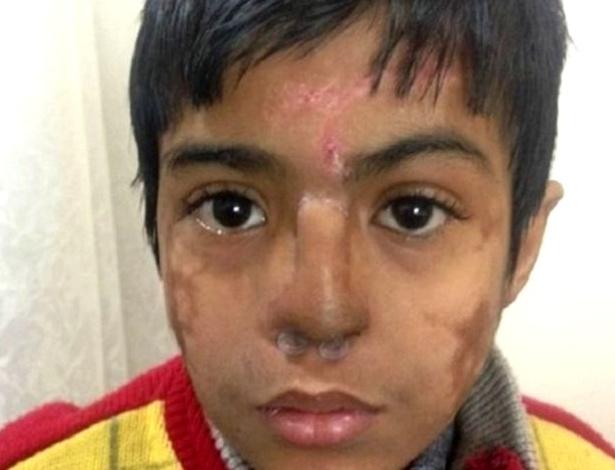 """Médicos substituíram o nariz desfigurado do garoto por outro que """"cresceu"""" na sua própria testa"""