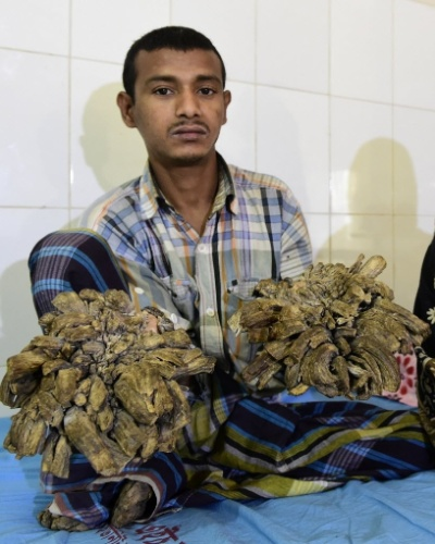 4.fev.2016 - O jovem, morador da região bengali de Khulna, está passando por testes e preparativos para retirar as deformidades que pesam ao menos 5 kg e inutilizaram suas mãos e pés